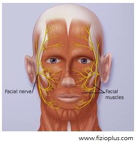 paraliza e nervit facial